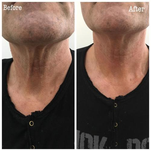 ProSculpt Neck Lift