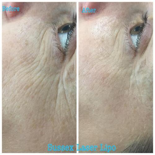 RF Face Skin Tightening