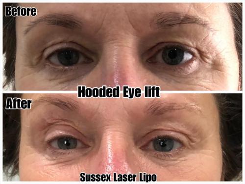 Hooded Eye Lift