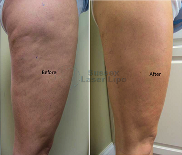 Ultimate Cellulite results 3