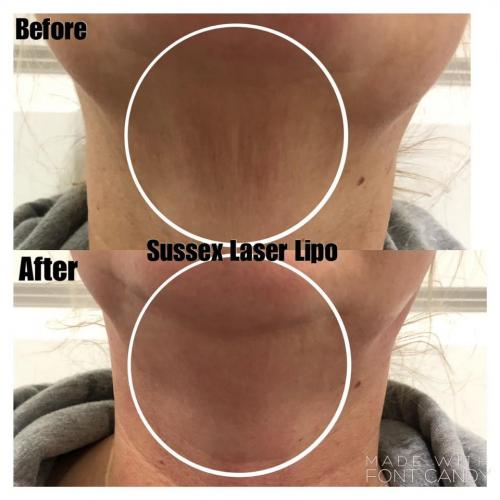 Non Surgical Neck Lift