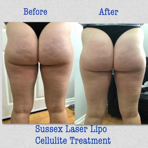 Ultimate Cellulite