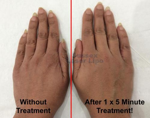 Hand Plumping treatment 1