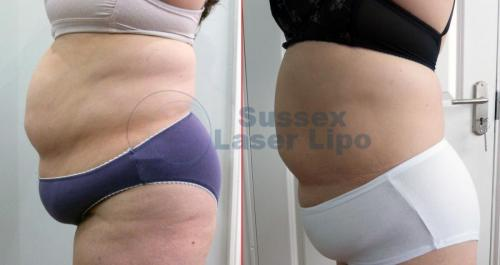 CryoGen Fat Freezing Inch Loss Results 5